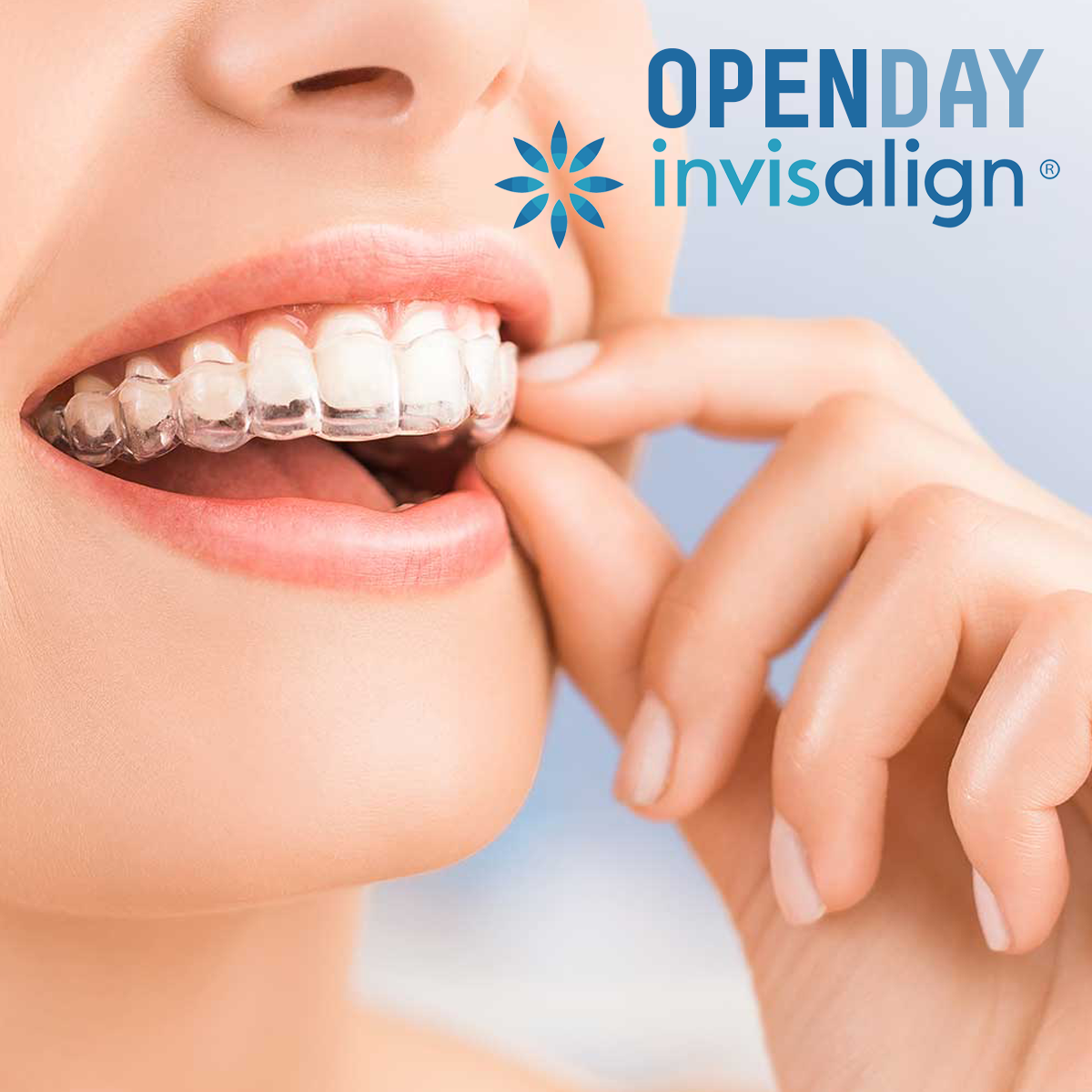 OPEN DAY INVISALIGN 2018